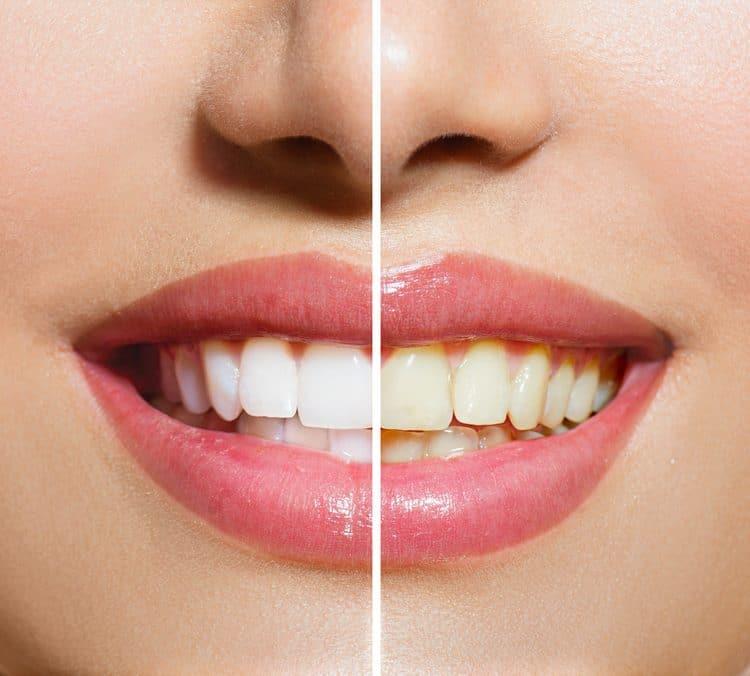 Zähne vor und nach Zahnbleaching