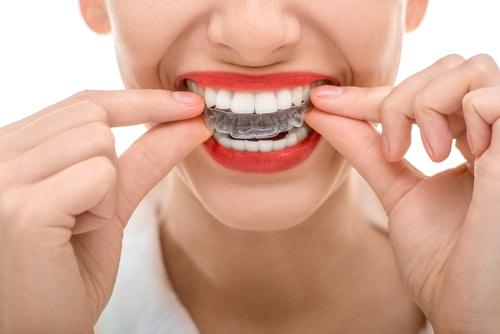Unischtbare Zahnspange