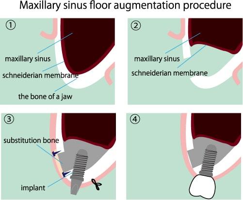 Knochenaufbau mit Sinuslift