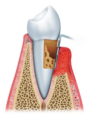 Paradontalchirurgie